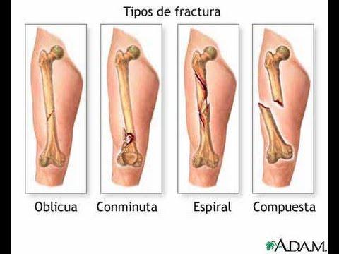 Falsa articulación del húmero de rayos X