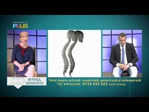 Medicamente pentru tratamentul fracturii articulațiilor șoldului