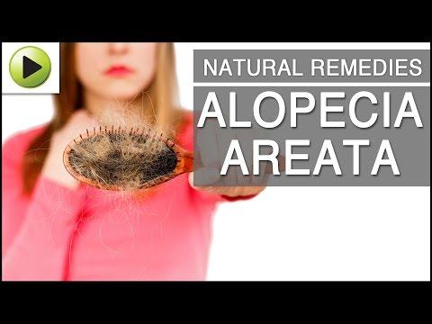 Hair Loss - Alopecia: Causes, Symptoms and Treatment