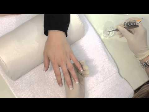 Die Laserbehandlung des Nagels in samare