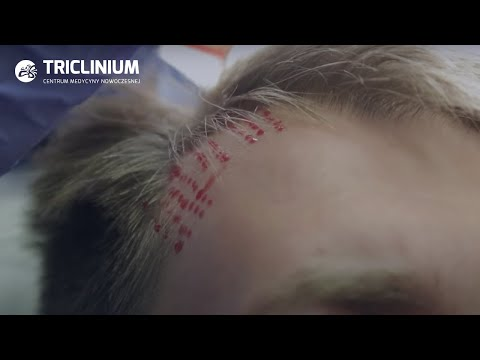 Lekarz adresy trichologist w Kazaniu