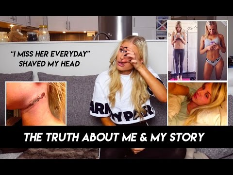 THE TRUTH ABOUT ME. MY STORY WITH CANCER & BEING SKINNY. - VLOG3