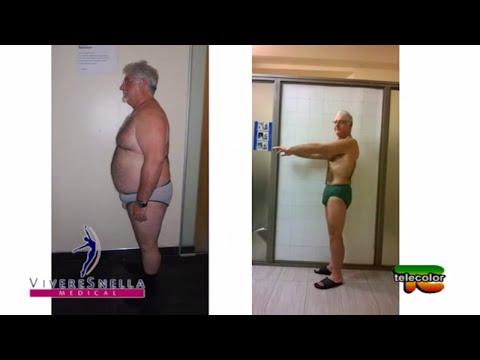 È semplice togliere il grasso da parti