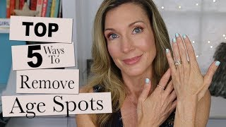 Top 5 Ways to Prevent + Reduce Age Spots on the Hands