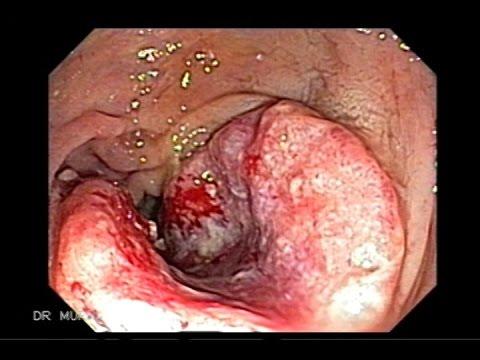 Enterobius vermicularis u trudnoci