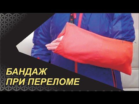 Необычный бандаж при переломе руки.