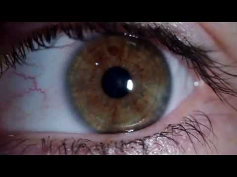 Lentile colorate pentru corectarea vederii laser