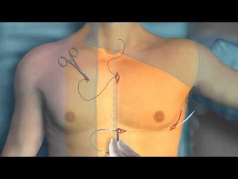 Trattamento della stenosi della colonna lombare