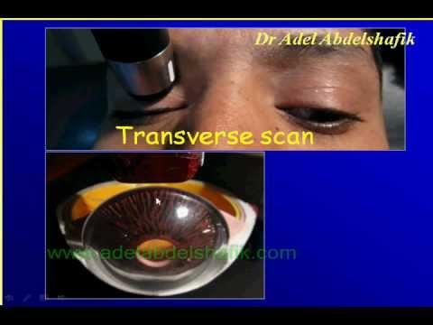 Rolul unei asistente medicale în oftalmologie