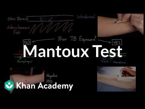 Mantoux test (aka  PPD or TST) (video) | Khan Academy