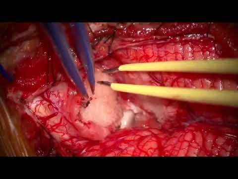 Hialuronsav artrózis kezelésére ár