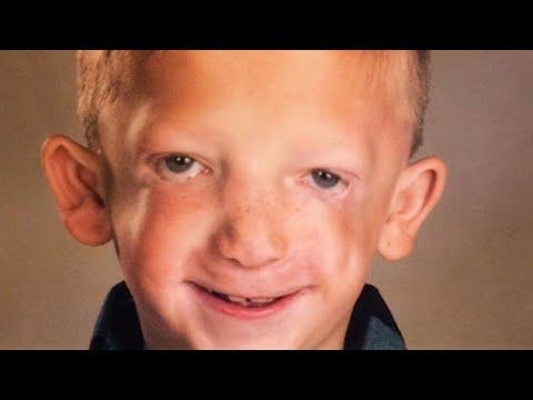 La sindrome del diabete insipido ipofisario Cushing