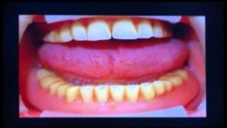 Prótese Total Convencional E Prótese Total Fixa Sobre Implante Dentário - Carga Imediata