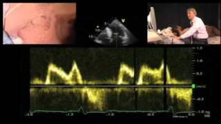 Diastolic Function — A Simple Approach