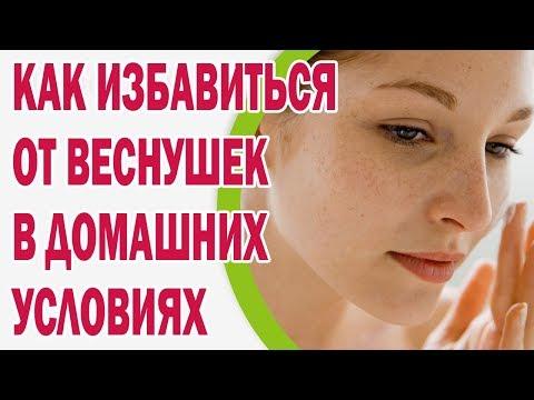 Пигментное пятно на лице в 20 лет