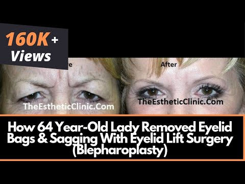 How 64 Year-Old Lady Removed Eyelid Bags & Sagging With Eyelid Lift Surgery (Blepharoplasty)