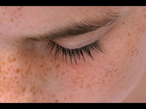 Гепариновая мазь от пигментных пятен на лице