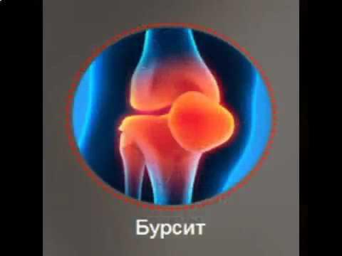 реклама лечим суставы