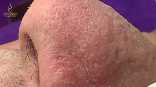 #65 #loannguyen_ACNE TREATMENT FOR TWO CUSTOMERS