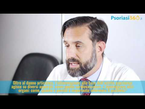 Ichthyosis atopic cura di dermatite