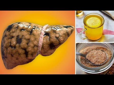 Amoxicillin rheumatischen Gelenke