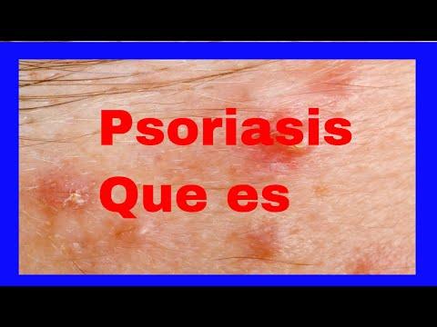 La tabla de los productos para la psoriasis