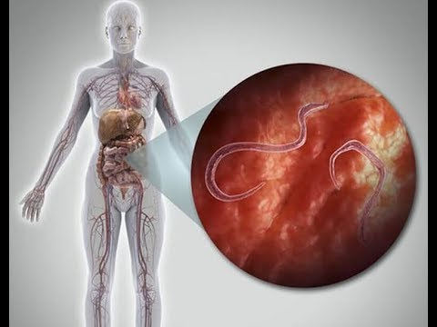 Giardiasis parasite symptoms