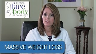 Dr. Ortega | Treating body areas after massive weight loss.