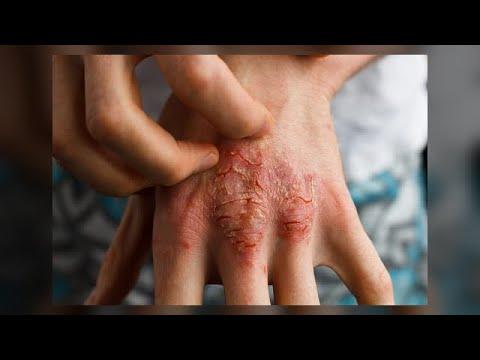 Wie die Schuppenflechte die Methoden der Behandlung zu behandeln