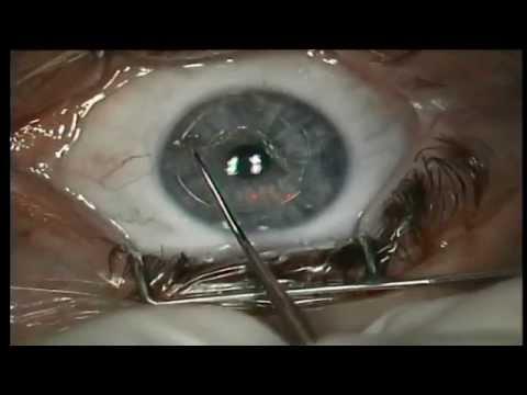 Крем для глаз препятствующий проявлению признаков старения кожи timewise