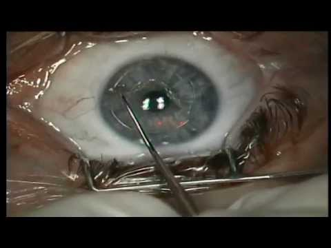 Леге артис центр коррекции зрения