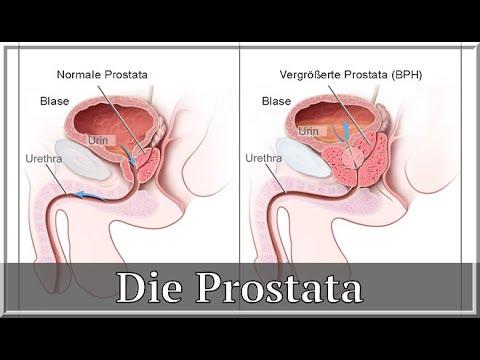 Echoarm Bildung in der Prostatabehandlung