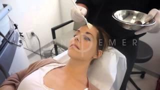 Chemical Peel Melasma | Melasma Treatment | Acne Scar Removal | Dr. Jason Emer