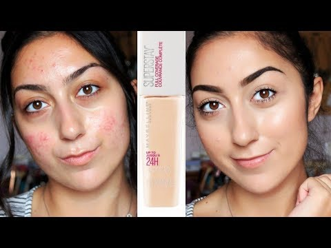 HONEST AF MAYBELLINE SUPERSTAY 24H FULL COVERAGE FOUNDATION REVIEW | ACNE PRONE SKIN