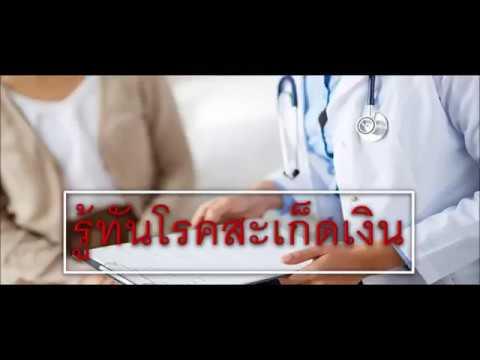 การรักษาโรคสะเก็ดเงิน 2,015 ข่าว