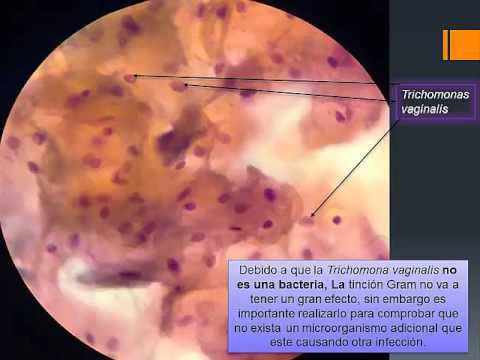 Az agy giardiasis