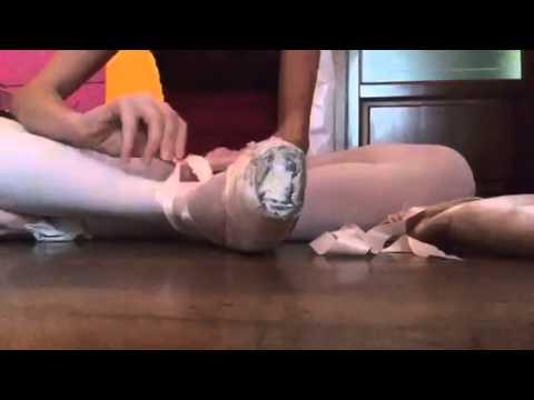 Deformante osteoartrite gomito a 2 passi