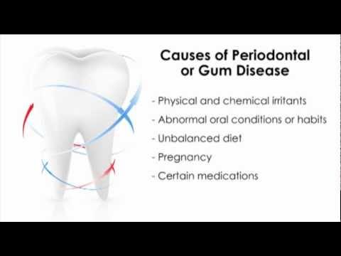 Video Causes of Periodontal or Gum Disease