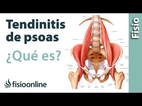 2 artrosis de la cadera