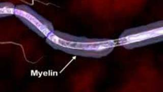 Multiple Sclerosis Explained