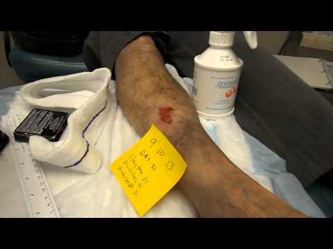 Thrombophlebitis ขาหัก