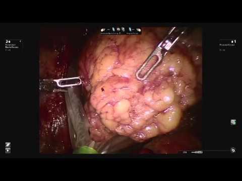 Resekcja wznowy nowotworu nerki w asyście robota chirurgicznego