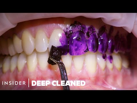 How Teeth Are Professionally Deep Cleaned | Deep Cleaned