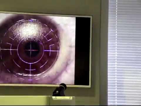 Инсульт зрение восстановление