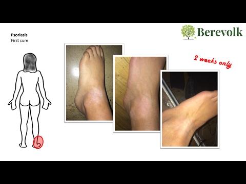 Leczéma sur le pied la varicosité