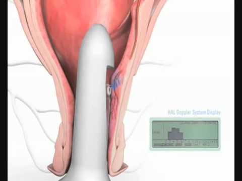 Candele per donne incinte a emorroidi con propolis