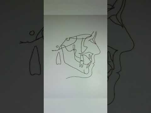 ТРГ по Шварцу, метод Твида, Ди Паоло (часть 1)