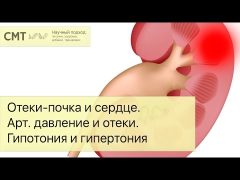 Лечение гипертонии 3
