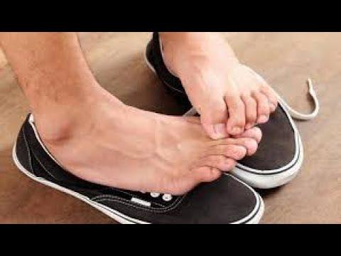 Comprimă pe picioare de la varicoză
