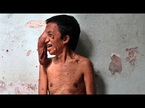 Indonesian Man Has Trunk Like Tumour On His Face
